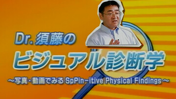 Dr.須藤のビジュアル診断学 | 第4回 頸部と甲状腺関連